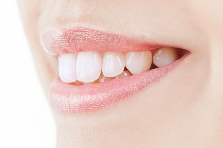 歯の色で笑顔の印象が変わります