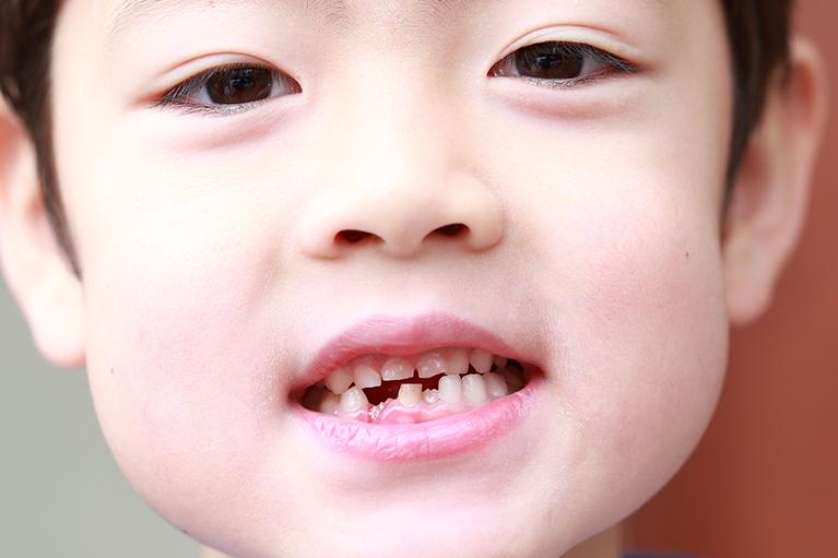 子どもの歯並びは遺伝?
